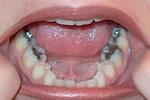 Κίνδυνοι από τα οδοντικά σφραγίσματα με υδράργυρο