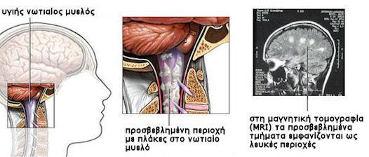 Σκλήρυνση κατά πλάκας - νωτιαίος μυελός
