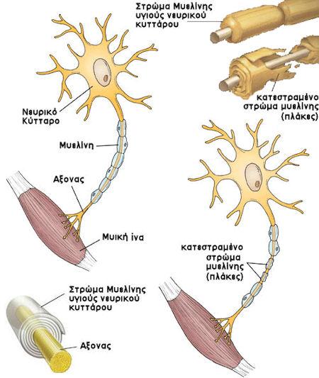 μυελίνη - σκλήρυνση κατά πλάκας